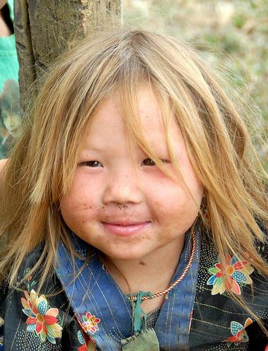 The Mongoloids - Kids Like Us - Kids Like Us Vs. The Mongoloids