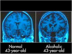 normal vs alkie brain