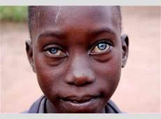 dark skin blue eyes 10