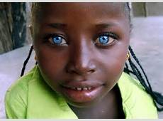dark skin blue eyes 4