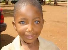 dark skin blue eyes 8