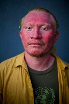 """""""Australoid"""" face (albino)"""