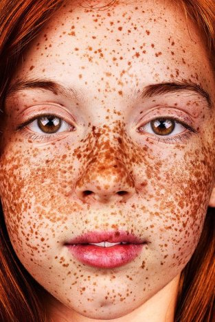 Photos-People-Freckles